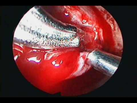 Pseudocapsule Excision