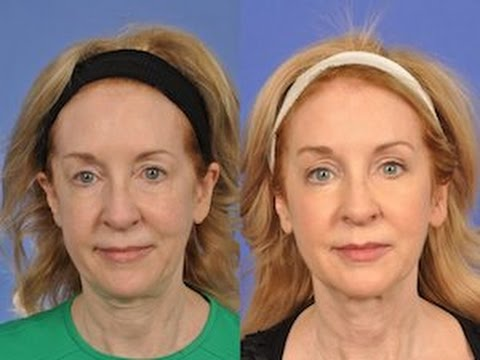 Wedding Makeover-Lee Ann's W Cosmetic Surgery Success  610-828-8880