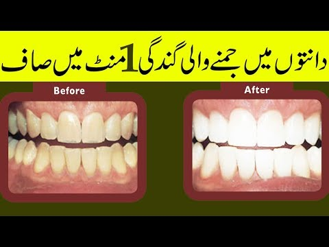 Video Teeth Whitening At Home-Tartar Removal Home Remedy In Hindi-Teeth Bleaching Gharelu Nuskhe In Urdu download in MP3, 3GP, MP4, WEBM, AVI, FLV January 2017