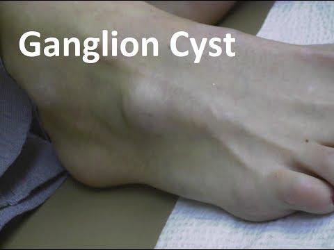 Ganglion Cyst Remedies!