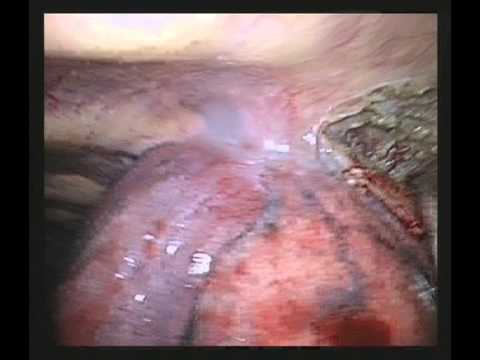 VATS Lobectomy Lower Lobe-Chest Wall Resection