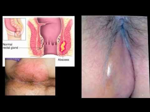 PERIANAL ABSCESS - Dr. Carlo Oller, emergency physician, talks about Perirectal Abscess.