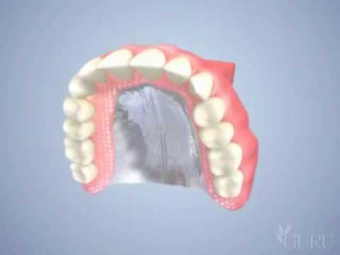 Prothèse dentaire complète amovible (dentier)