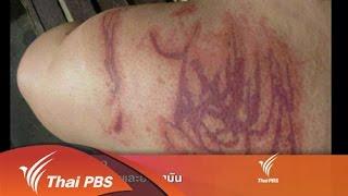 ที่นี่ Thai PBS - 3 ส.ค. 58