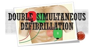 Using two defibrillators and shocking simultaneously or sequentially patients in ventricular fibrillation who are refractory to standard defibrillation is a desperate but sometimes life saving intervention.  The research is not complete on this technique and will be considered by many to be an off-label use of the defibrillators.  Nevertheless, when the patient is dying and unresponsive to standard interventions, it may be appropriate to try this technique.