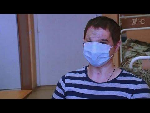 Сенсация: Пересадка лица впервые в России