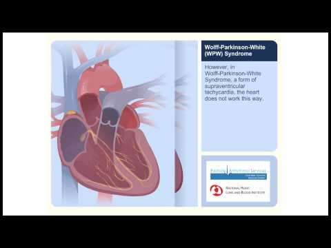 WPW (Wolff-Parkinson-White Syndrome) Animation Video