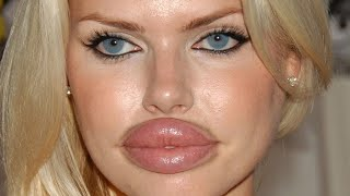 Worst Plastic Surgery Fails Ever!