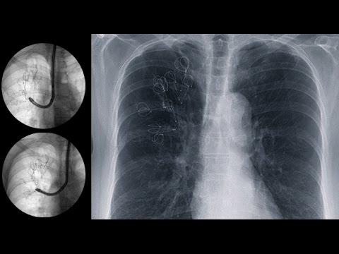 Reducción del volumen de un pulmón con enfisema grave mediante broncoscopia
