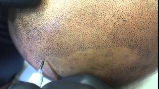 Scalp Micropigmentation, Scalp Tattoo or Hair Tattoo Treatment by Tino Barbone at SMC