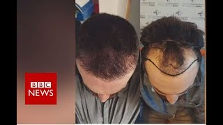Video Hair loss: Fighting against my receding hairline  - BBC News MP3, 3GP, MP4, WEBM, AVI, FLV September 2018
