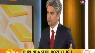 Doç.Dr.Hayati Akbaş-Fonksiyonel Burun Estetiği-Star Tv