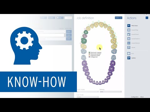 Ceramill Mind - Introduction of new GUI