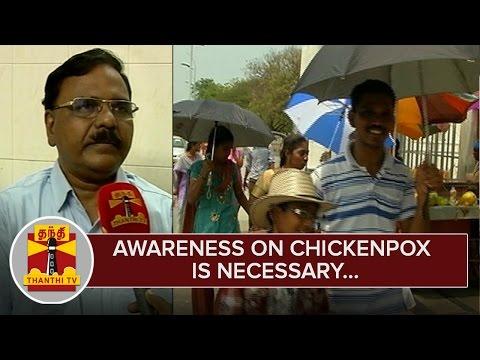 Awareness-on-Chickenpox-is-Necessary--Doctors--Thanthi-TV