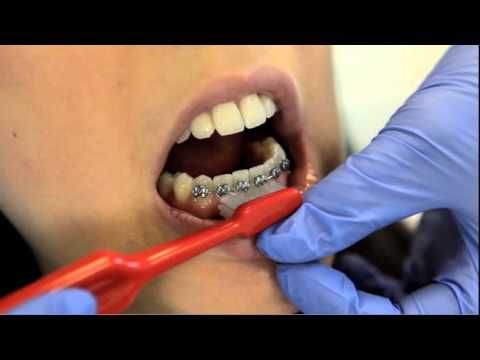 The Specialist Orthodontic Practice - Oral Hygiene