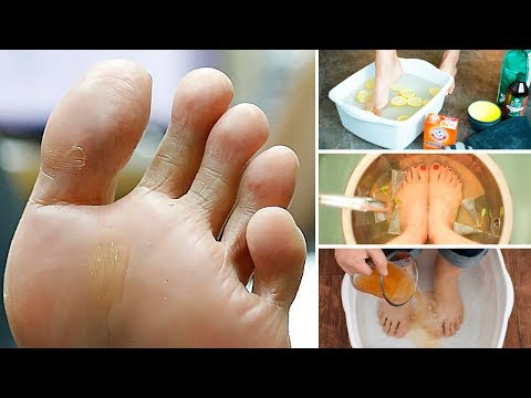 How To Get Rid Of Smelly Feet For Good!