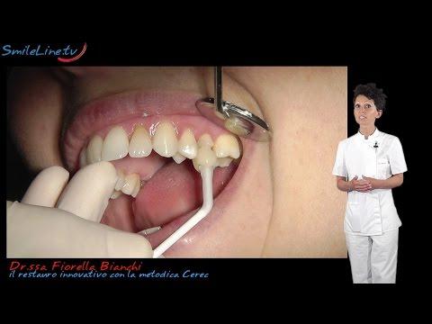 il restauro del dente con la metodica Cerec, intarsi e faccette estetiche - Clinica Merli Rimini