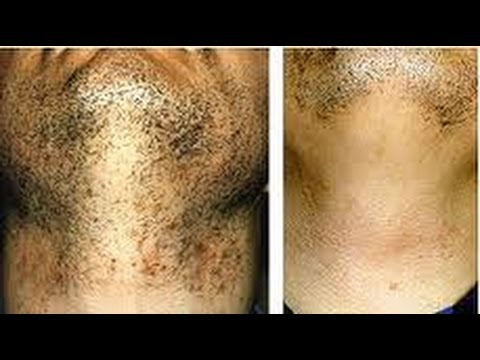 How To Treat Ingrown Hairs (Particulary, Black Skin)