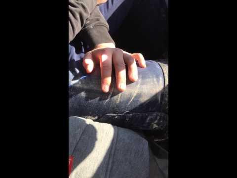 這名調皮的男生拿了個放大鏡聚焦陽光在朋友的手上,結果…