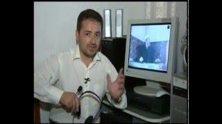 Film Dokumentar Molla Jakup Hasipi 1/9.wmv