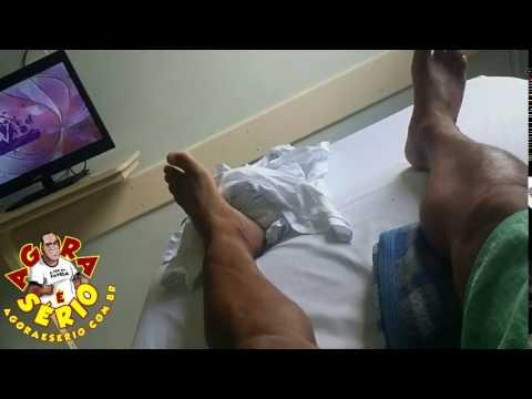 Jornal Agora é Sério vai continuar de molho depois do retorno ao ortopedista , Férias Forçadas devido a cirurgia do joelho !!