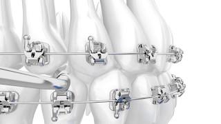 American Orthodontics' Empower self ligating braces