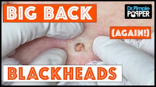 The Third Return of Big Back Blackheads!  Dr Pimple Popper
