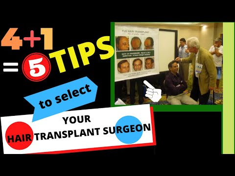 hair transplantation in India - http://www.hairtransplant-india.org Selecting your doctor for your FUE hair transplant may make you loose some more hair! Here are some tips that may help yo...