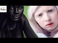 5 فتيات يمتلكن اغرب لون بشرة فى العالم !