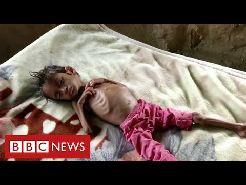 Millions of children face starvation in Yemen warns United Nations - BBC News