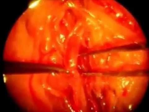 Microsurgery.End to end anastomosis of abdominal aorta of rats.wmv