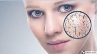 Video വരണ്ട ചർമ്മം ഇനി നിങ്ങള്ക്ക് ഇണ്ടാവില്ല. ഈ 3 tips follow ചെയു| 3 tip for dry skin and eczema MP3, 3GP, MP4, WEBM, AVI, FLV Januari 2019