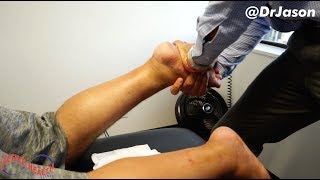 Video Dr. Jason - COLOMBIAN MAN TRAVELS FROM TEXAS FOR (*BIG & LOUD*) FOOT ALIGNMENT MP3, 3GP, MP4, WEBM, AVI, FLV Mei 2019
