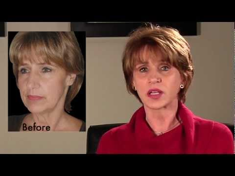 Before and After QuickLift Facelift Surgery | Karen Patient Series
