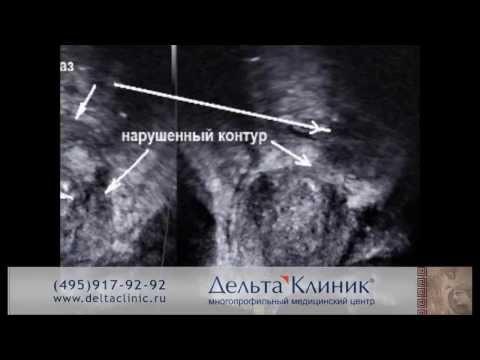 ТРУЗИ предстательной железы. Трансректальное УЗИ простаты в Дельта Клиник