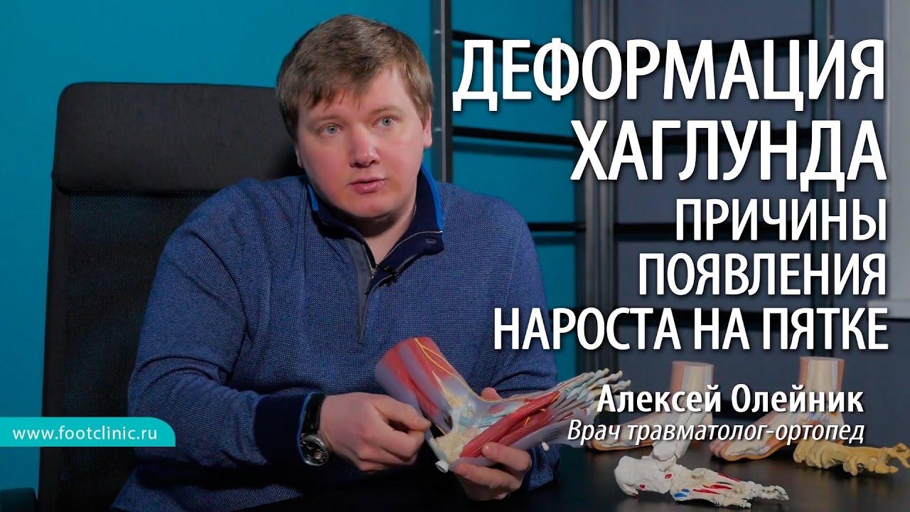Причины появления остеофита пяточной кости - шишки на пятке - хирургия стопы Алексея Олейника