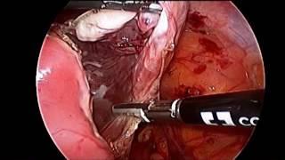 Laparoskopik böbrek kisti ameliyatı