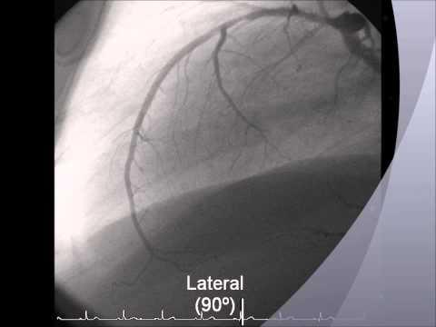 Proyecciones en la Coronariografía - Cateterismo