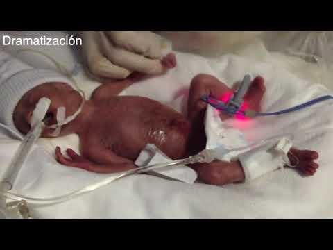 Video - Πορτογαλία: Η γέννηση ενός μωρού χωρίς πρόσωπο συνταράσσει τη χώρα