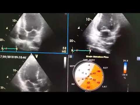 Ecocardiograma de paciente con hipertrigliceridemia severa, dilatación leve del VI, movimiento paradojal del séptum por BCRI. Dr. Luciano Pereira. Ciudad del Este. Paraguay