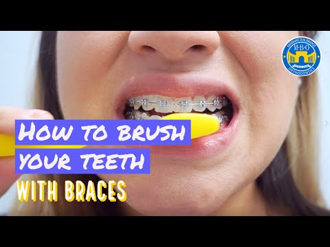 How to Brush with Braces? - 3 Brushing Tips