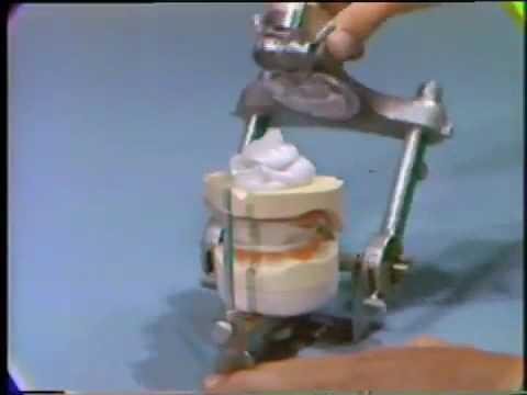 Mounting the Master Casts on the Articulator (видео)