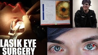 My Lasik Eye Surgery Experience! *LIVE FOOTAGE* | LasikPlus by Tyler Rugge