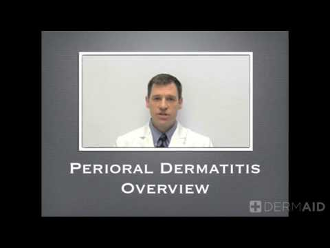 Perioral Dermatitis Overview 2