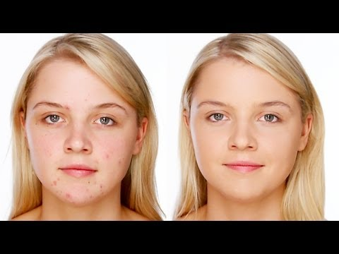 Acne/Blemish Covering Makeup - Foundation & Concealer Tutorial