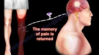 Dr. Ebraheim's educational animated video describes the condition of Phantom Pain after amputation, the etiology, signs and symptoms, diagnosis, and ...