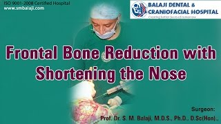 Video Frontal bone reduction with shortening the nose - Dr. S.M Balaji MP3, 3GP, MP4, WEBM, AVI, FLV Juli 2018