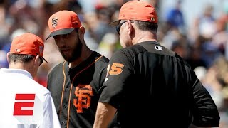 Madison Bumgarner could miss 6-8 weeks with broken bone in hand after being hit by line drive | ESPN