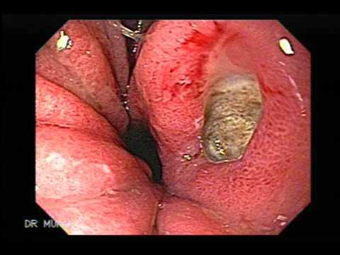 how to treat h pylori ulcer