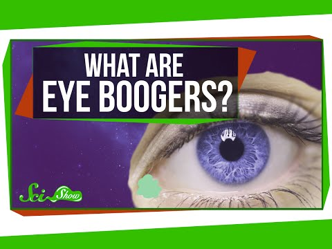 What Are Eye Boogers